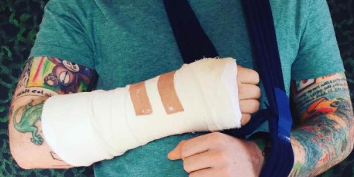 Ed Sheeran se fractura un brazo en accidente de bicicleta