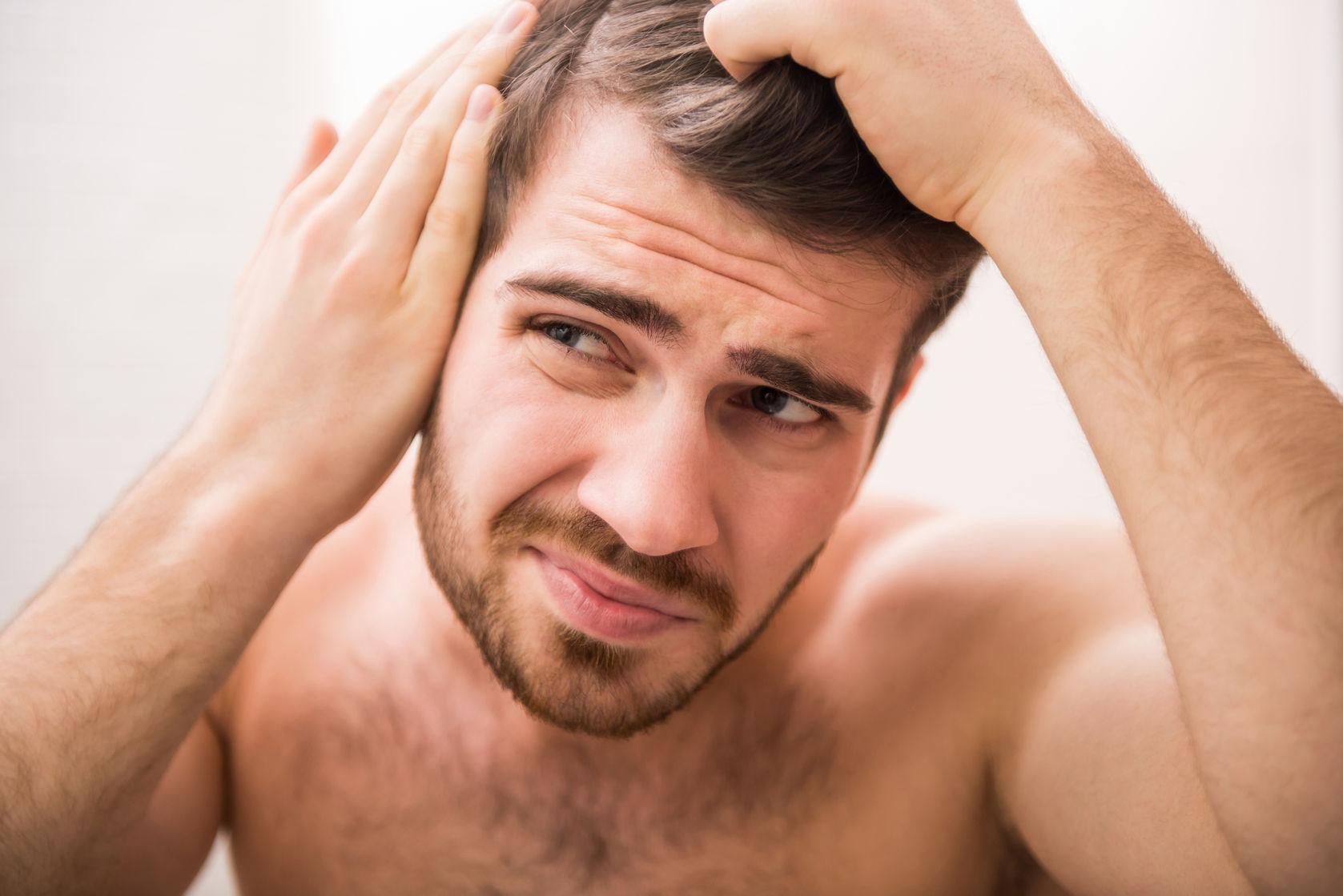 5 datos curiosos sobre la calvicie que seguramente no conocías