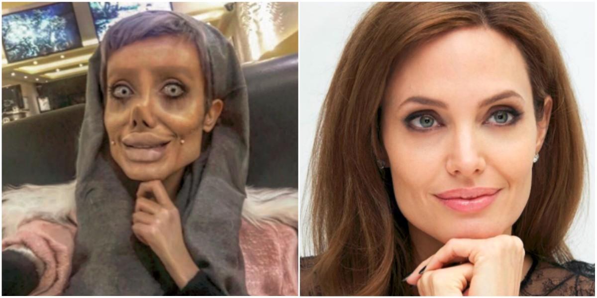 La trágica situación de la mujer que se operó para parecerse a Angelina Jolie