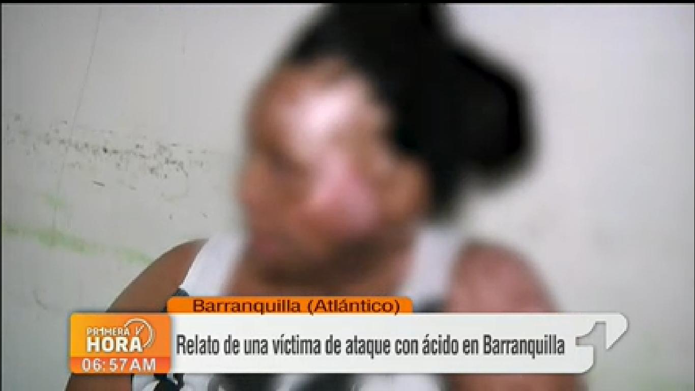 """«Me quemó para que no fuera de nadie más"""", mujer quemada con ácido"""