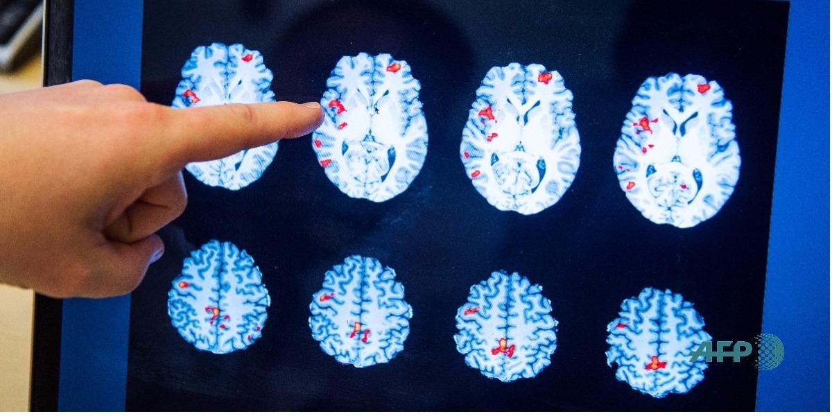 La importancia de la Programación Neuro Lingüistica - Foto: JONATHAN NACKSTRAND / AFP