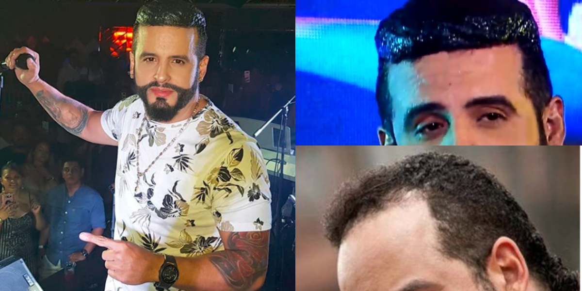 El impactante cabello del cantante Nelson Velásquez que causa burlas en redes sociales