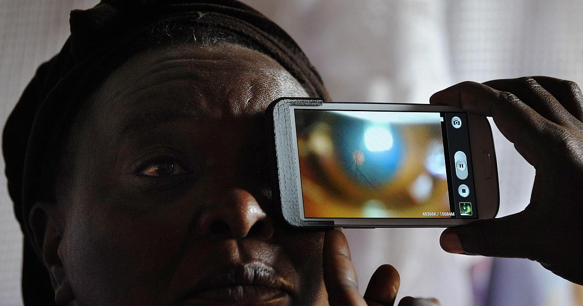 Un examen de la vista podría predecir el Alzheimer