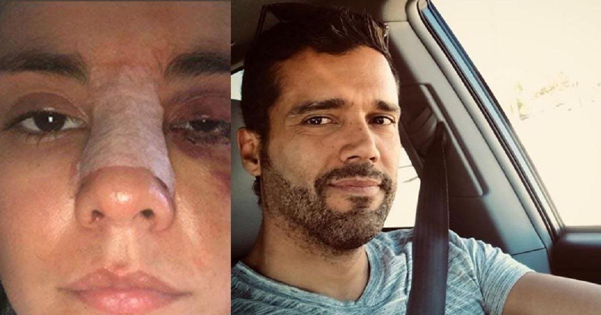 «Eileen Moreno me humilló y me rasguñó durante 6 horas»: Alejandro García
