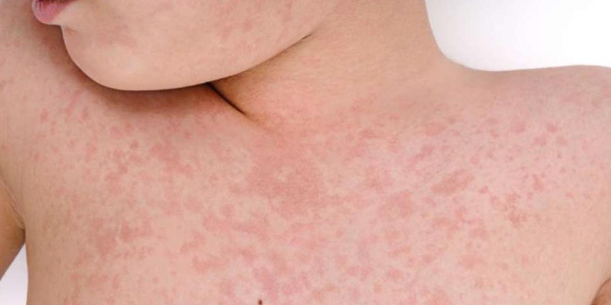 Alerta por aumento de casos de sarampión en Cartagena