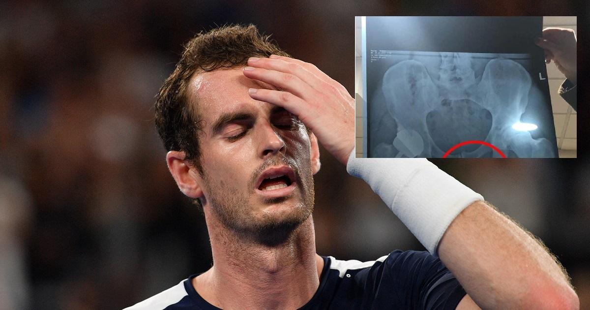 Andy Murray publica radiografía de su cadera sin darse cuenta que aparecía su miembro
