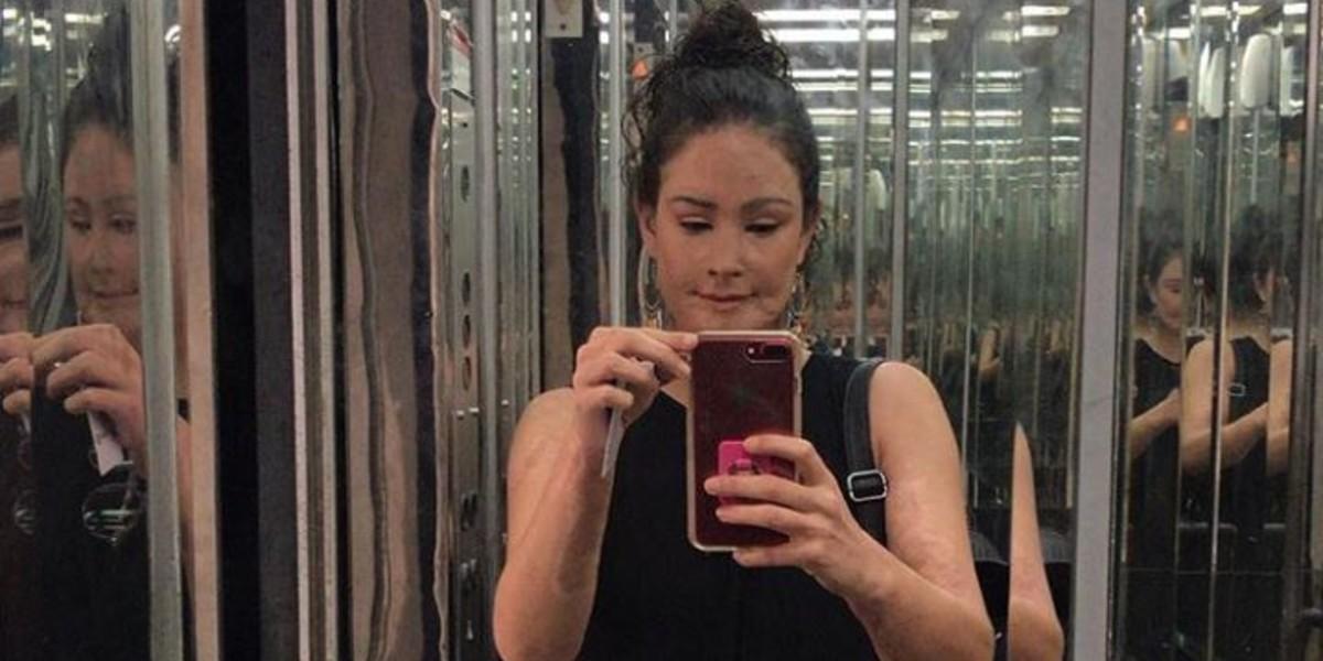 Cinco años después, Natalia Ponce compartió su transformación tras ser atacada con ácido