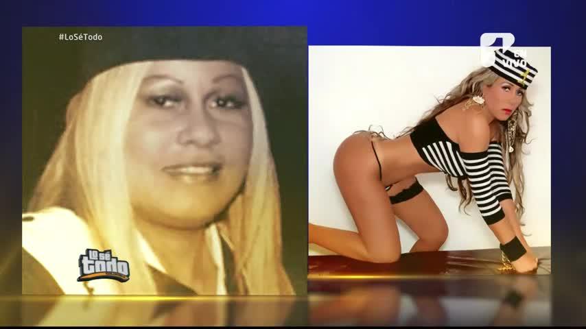 Estos son los famosos colombianos a los que se les fue la mano con las cirugías