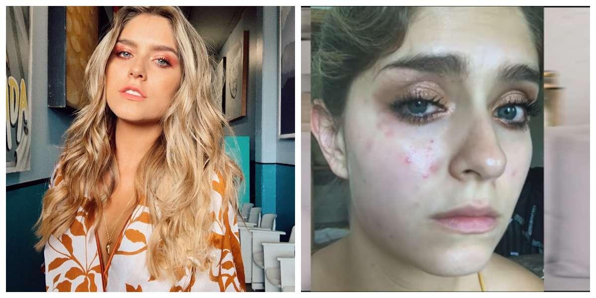 El drástico cambio que sufrió Laura Tobón en su cara