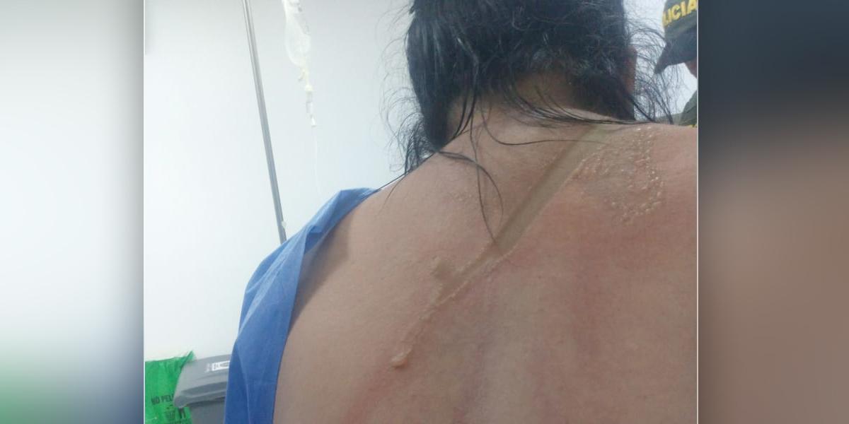 Mujer fue quemada con ácido por tercera vez en Neiva
