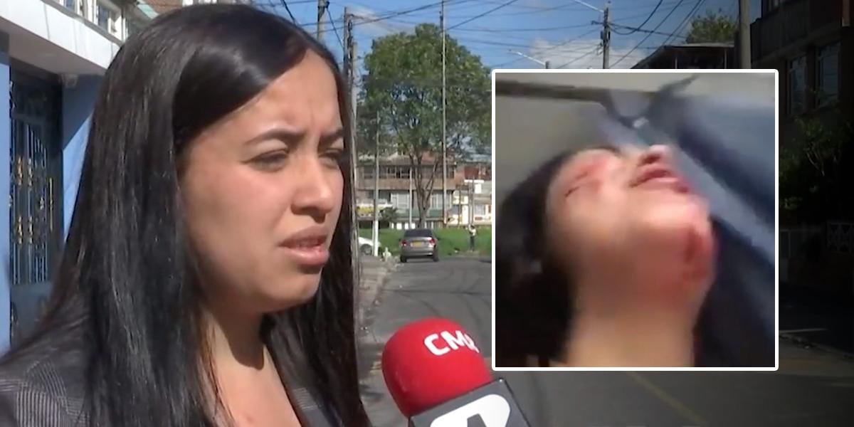 Mujer recibió una brutal golpiza por parte de su expareja en Bogotá